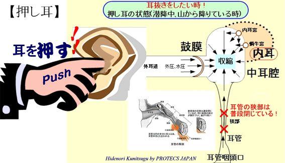 押し耳状態図